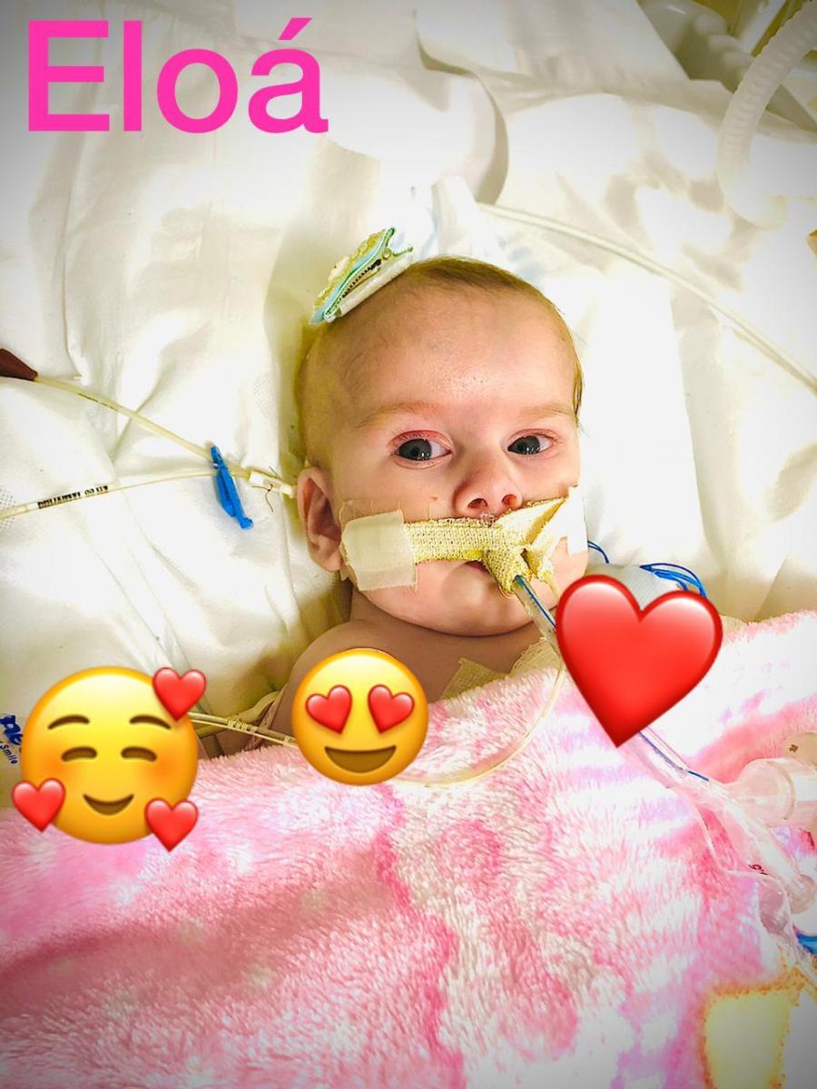 ALEGRIA: Casal de RO comemora cirurgia de separação de filhas siamesas